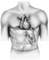 heart-pump